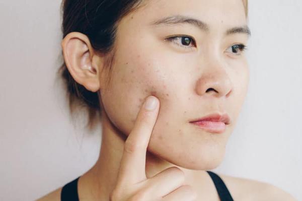 Da nổi mụn nhiều, nám, tàn nhang là dấu hiệu rối loạn nội tiết tố nữ thường gặp