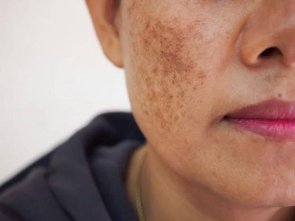 Nám da là dấu hiệu suy giảm nội tiết tố nữ thường gặp sau sinh
